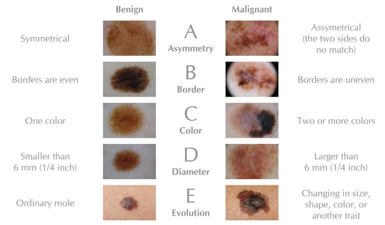Figura ABCDE Melanoma